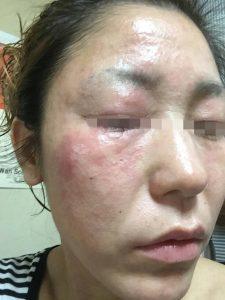 アトピー性皮膚炎-顔①