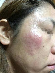 アトピー性皮膚炎-顔②