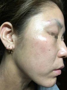 アトピー性皮膚炎-顔③