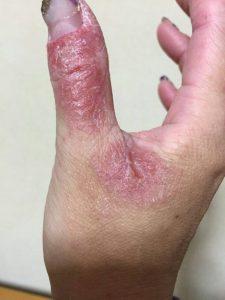 アトピー性皮膚炎ー親指①