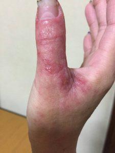 アトピー性皮膚炎ー親指②