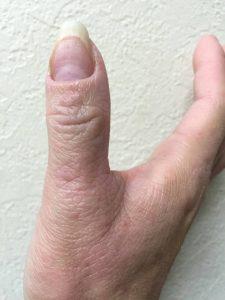 アトピー性皮膚炎ー親指③